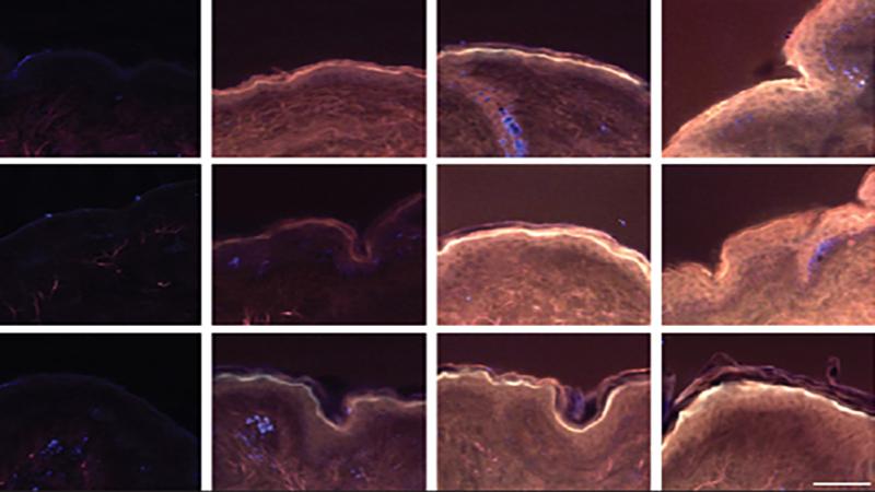 A szőrtüszőknek kulcsszerepe van a magnézium felszívódásában